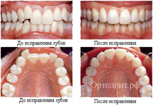 стоматология минет